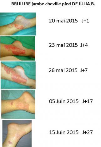 Brulure julia evolution 27 jours