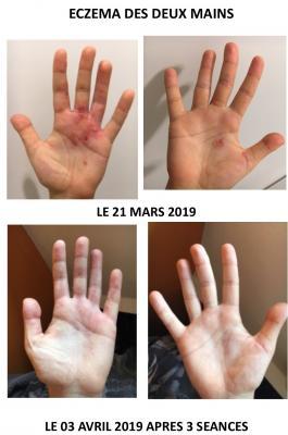 Temoignage eczema reix 1