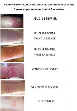 Ulcere variqueux 1